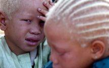 Thiès: « Y'en a marre » se veut l'avocat des albinos et aveugles