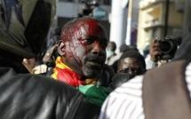 Sénégal-Tortures dans les bureaux d'enquête de la police et de la gendarmerie : les acteurs se penchent sur la question