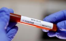 Point #Covid_19 de ce lundi 25 mai...83 nouvelles contaminations, 15 malades en réanimation et 59 patients guéris