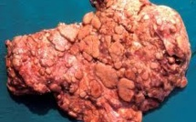 La tuberculose a migré d'Afrique avec l'homme
